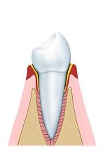 Geringe parodontitis
